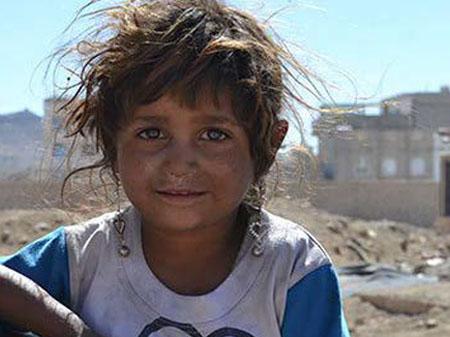 Ullerslev 300000 Yemen 2017